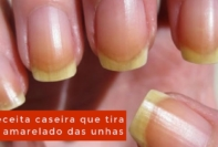 Como tirar o amarelado das unhas