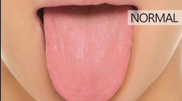 8 sinais que sua língua dá sobre sua saúde