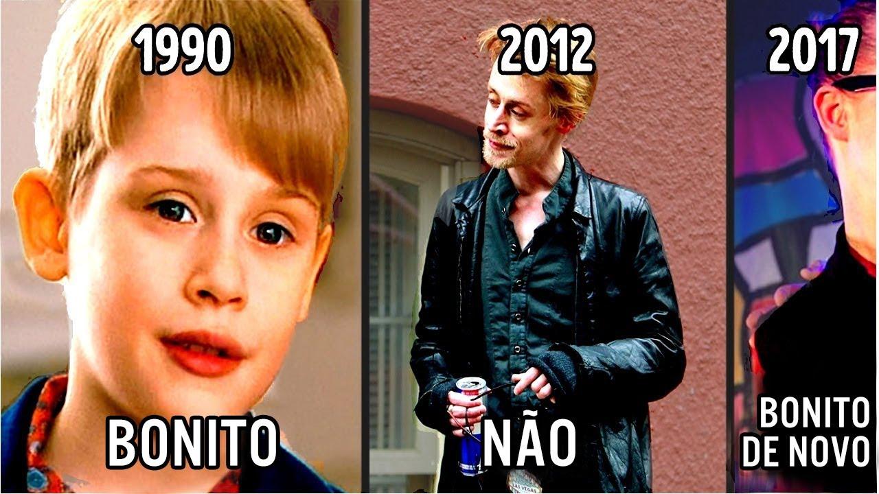 13 famosos antes e agora